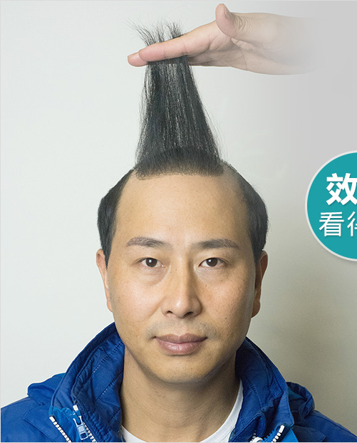韩艺家增发,您身边的头发问题专家!专业提供:男士增发  女士增发  盖白发 高档个性化假发定制服务,9年增发经验,10分满意服务