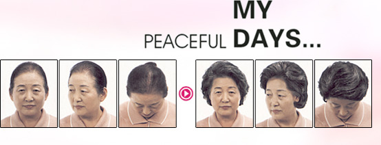老年人遮白发\稀少方案